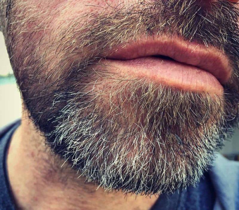 a man's beard